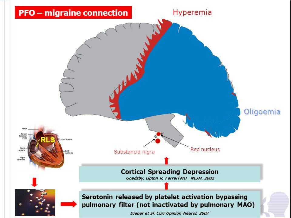 PFO – migraine connection