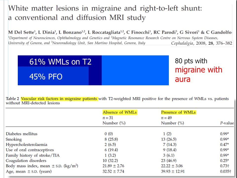 61% WMLs on T2 45% PFO 80 pts with migraine with aura