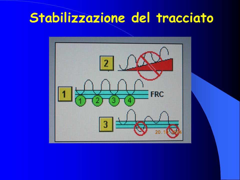 Stabilizzazione del tracciato
