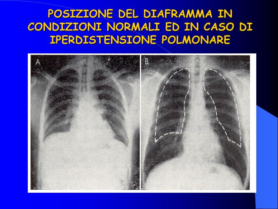 POSIZIONE DEL DIAFRAMMA IN CONDIZIONI NORMALI ED IN CASO DI IPERDISTENSIONE POLMONARE