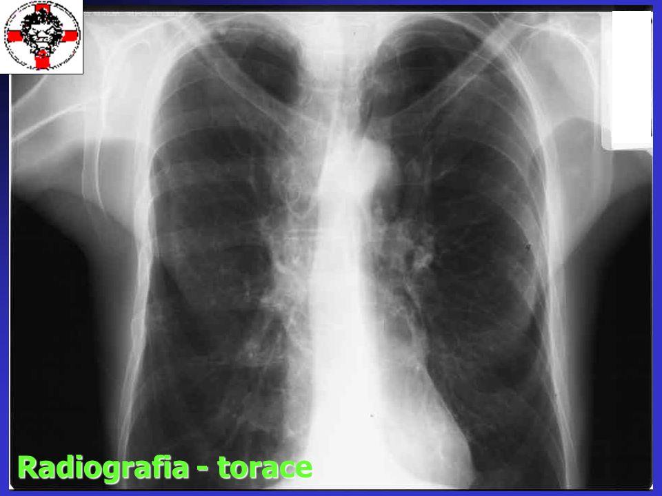 Radiografia - torace