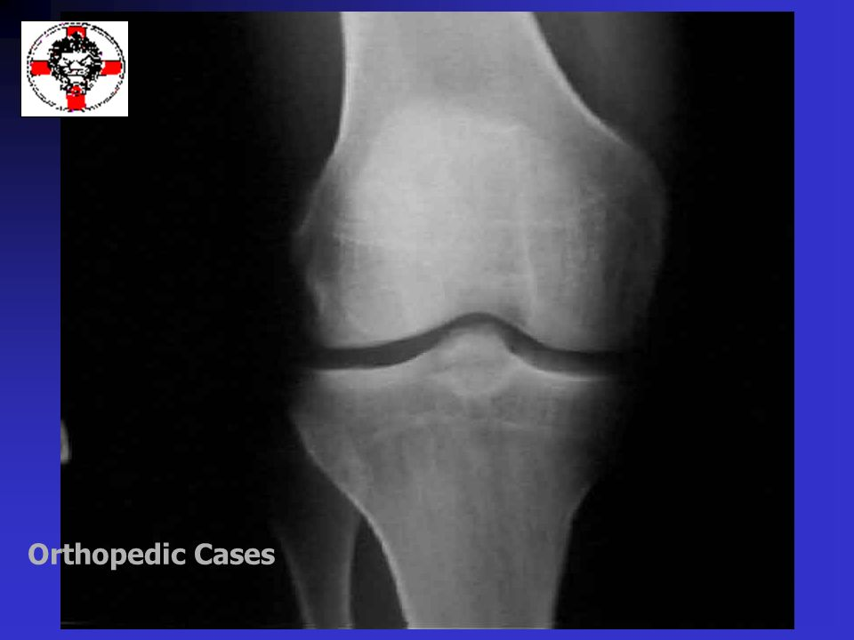 Orthopedic Cases