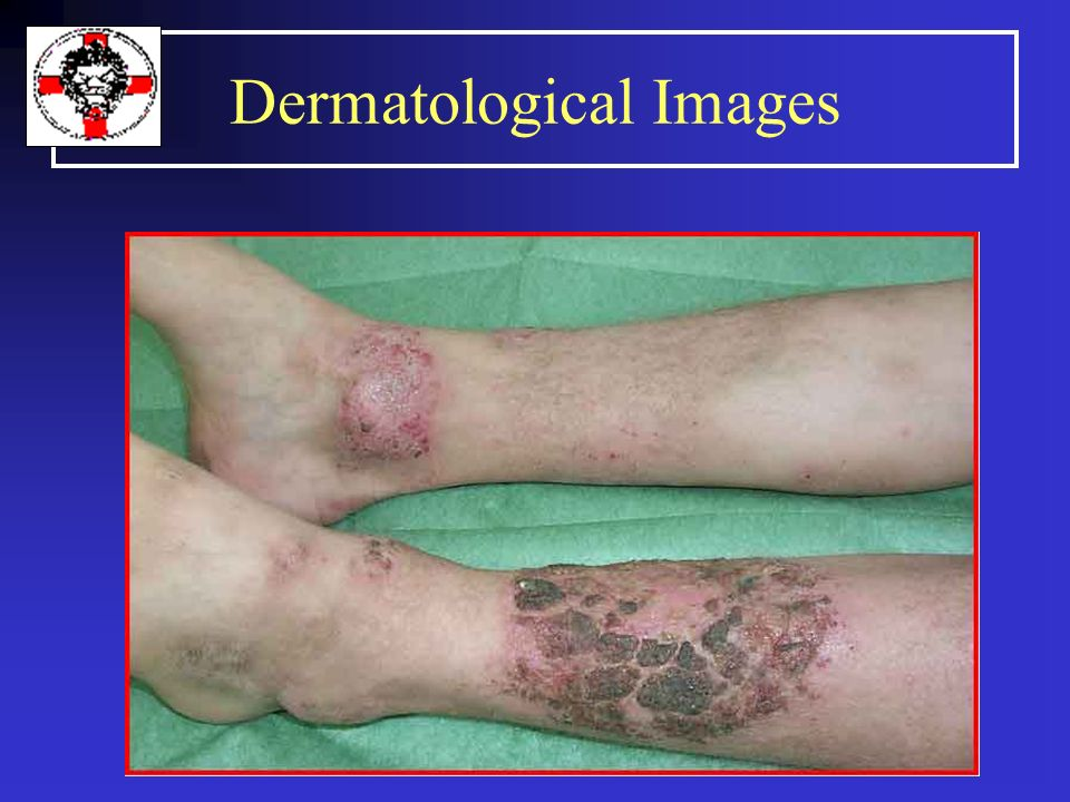 Dermatological Images