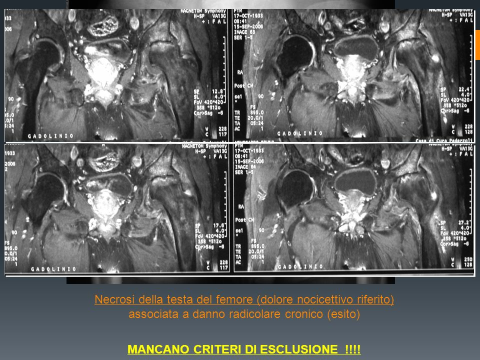 MANCANO CRITERI DI ESCLUSIONE !!!!