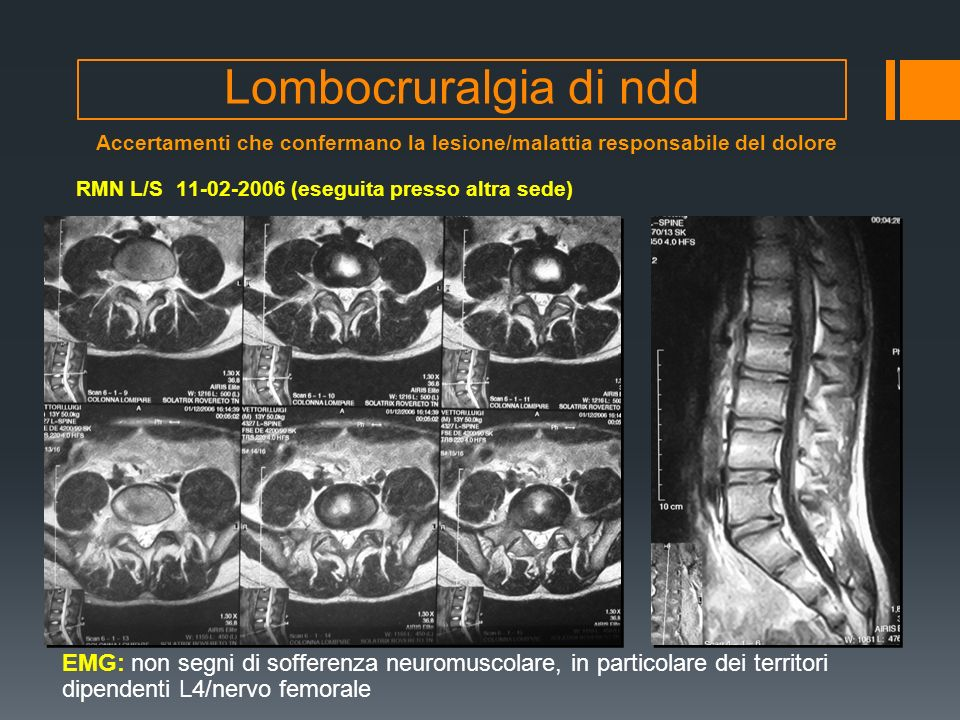Lombocruralgia di ndd Accertamenti che confermano la lesione/malattia responsabile del dolore. RMN L/S 11-02-2006 (eseguita presso altra sede)