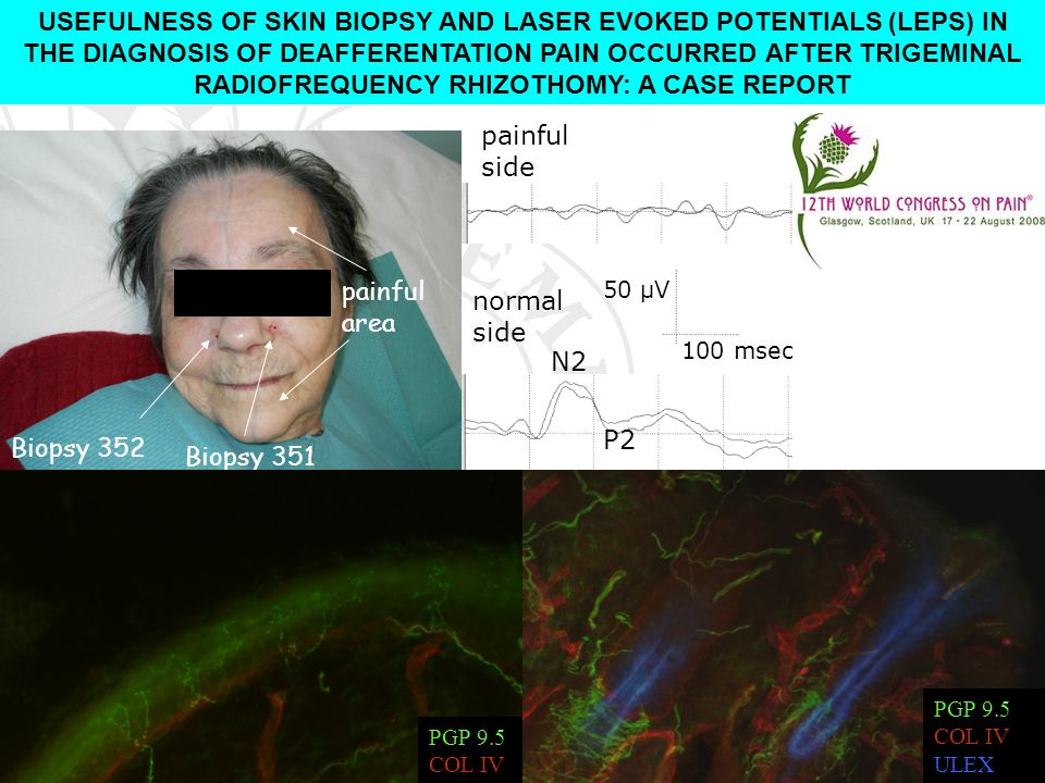 USEFULNESS OF SKIN BIOPSY AND LASER EVOKED POTENTIALS (LEPS) IN THE DIAGNOSIS OF DEAFFERENTATION PAIN OCCURRED AFTER TRIGEMINAL RADIOFREQUENCY RHIZOTHOMY: A CASE REPORT