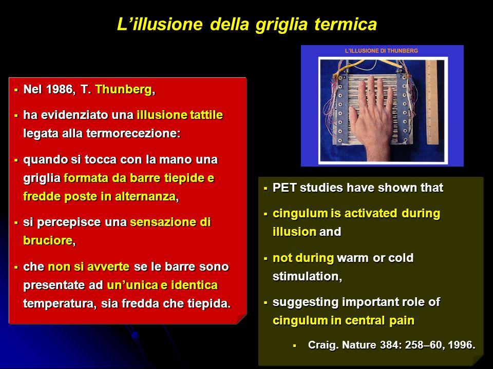 L'illusione della griglia termica