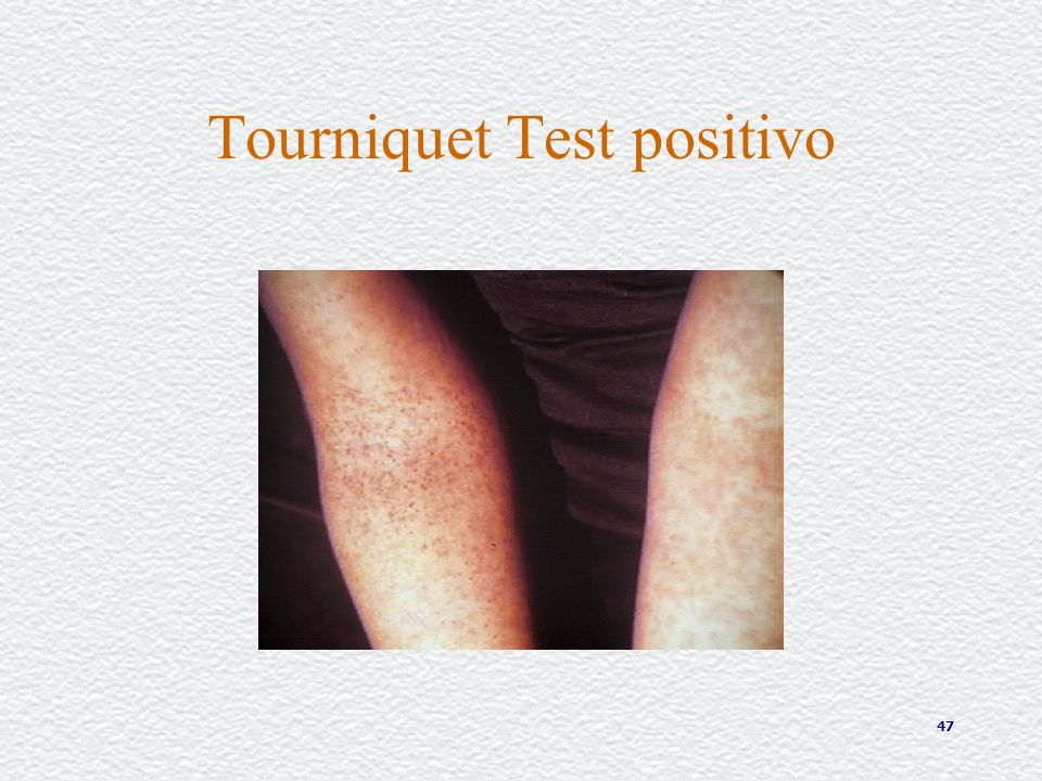 Tourniquet Test positivo