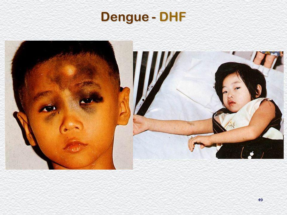 Dengue - DHF