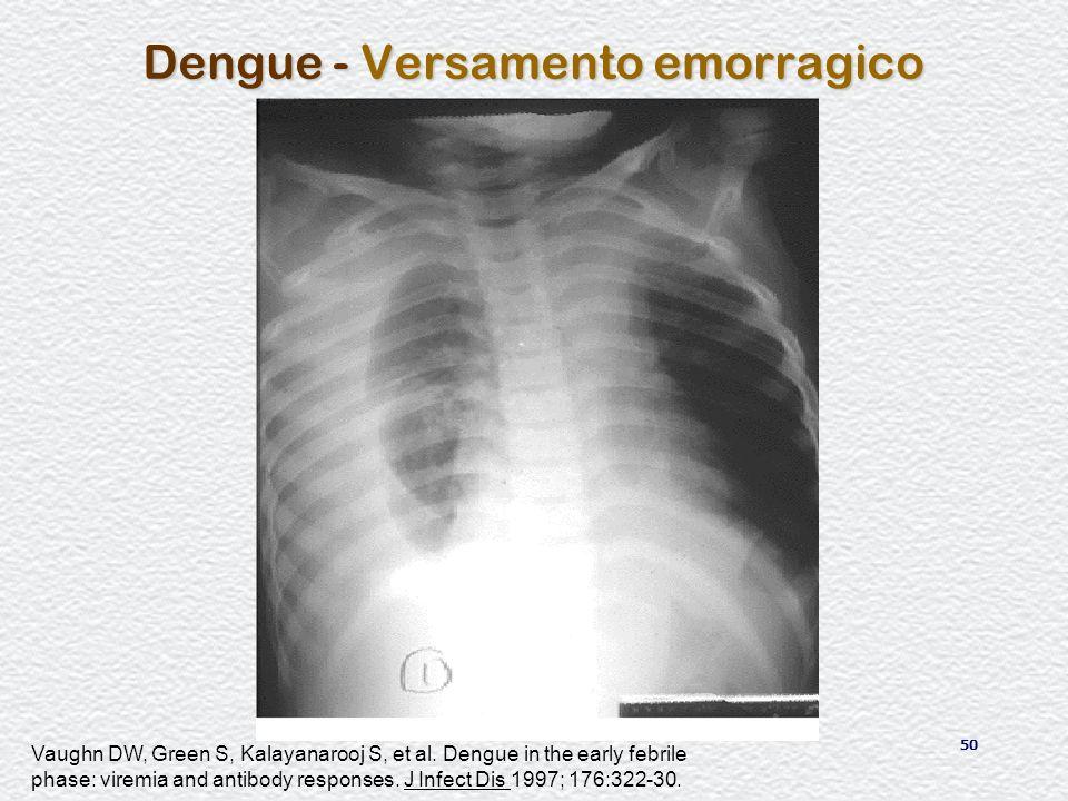 Dengue - Versamento emorragico