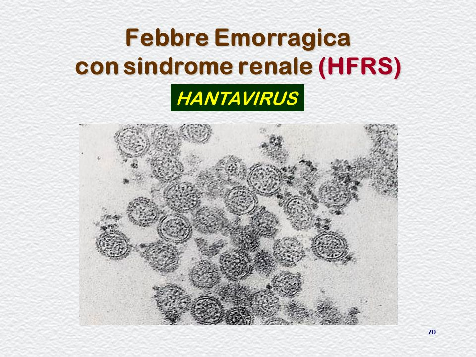 Febbre Emorragica con sindrome renale (HFRS)