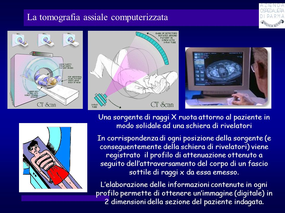 La tomografia assiale computerizzata