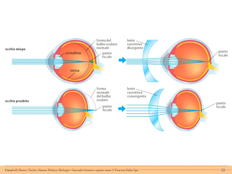 Confronto tra un occhio miope (bulbo oculare troppo allungato, in senso anteroposteriore) e uno presbite (bulbo oculare troppo corto).