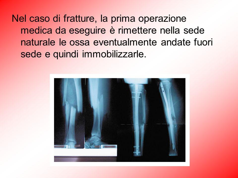 Nel caso di fratture, la prima operazione medica da eseguire è rimettere nella sede naturale le ossa eventualmente andate fuori sede e quindi immobilizzarle.