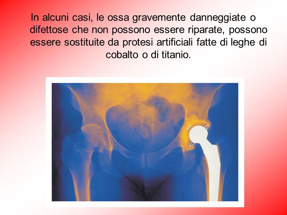 In alcuni casi, le ossa gravemente danneggiate o difettose che non possono essere riparate, possono essere sostituite da protesi artificiali fatte di leghe di cobalto o di titanio.