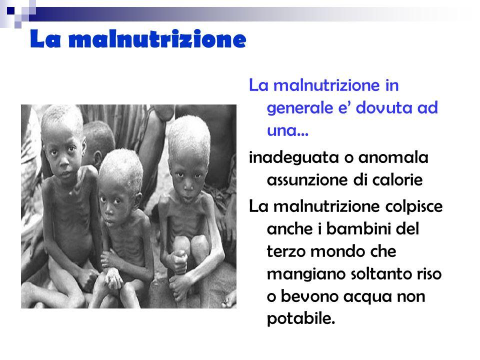 La malnutrizione