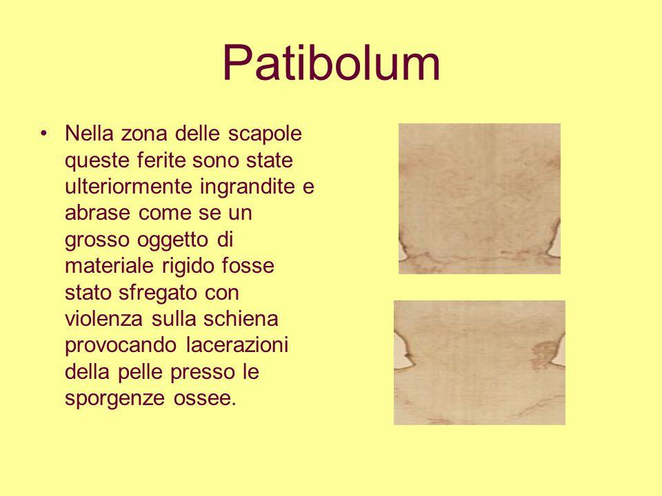 Patibolum