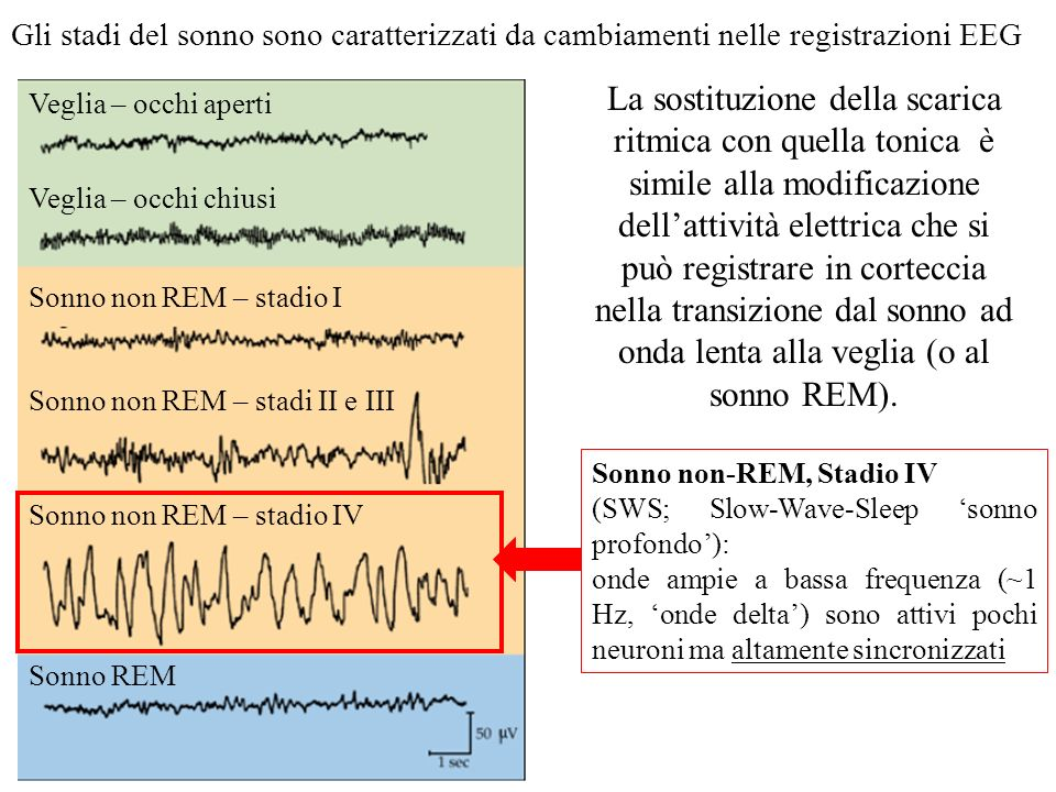 Gli stadi del sonno sono caratterizzati da cambiamenti nelle registrazioni EEG