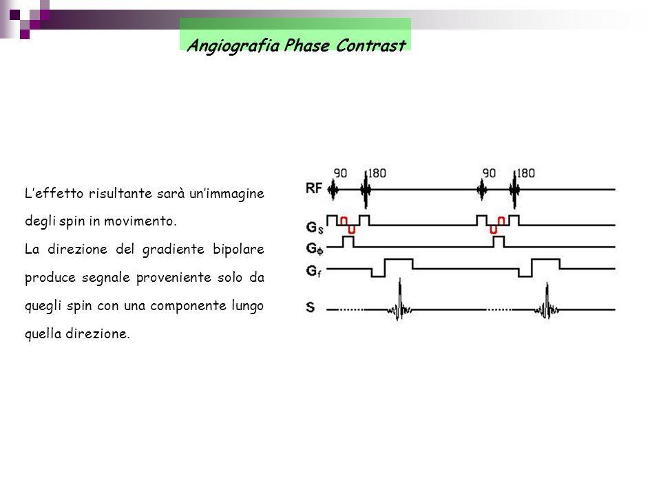 Angiografia Phase Contrast