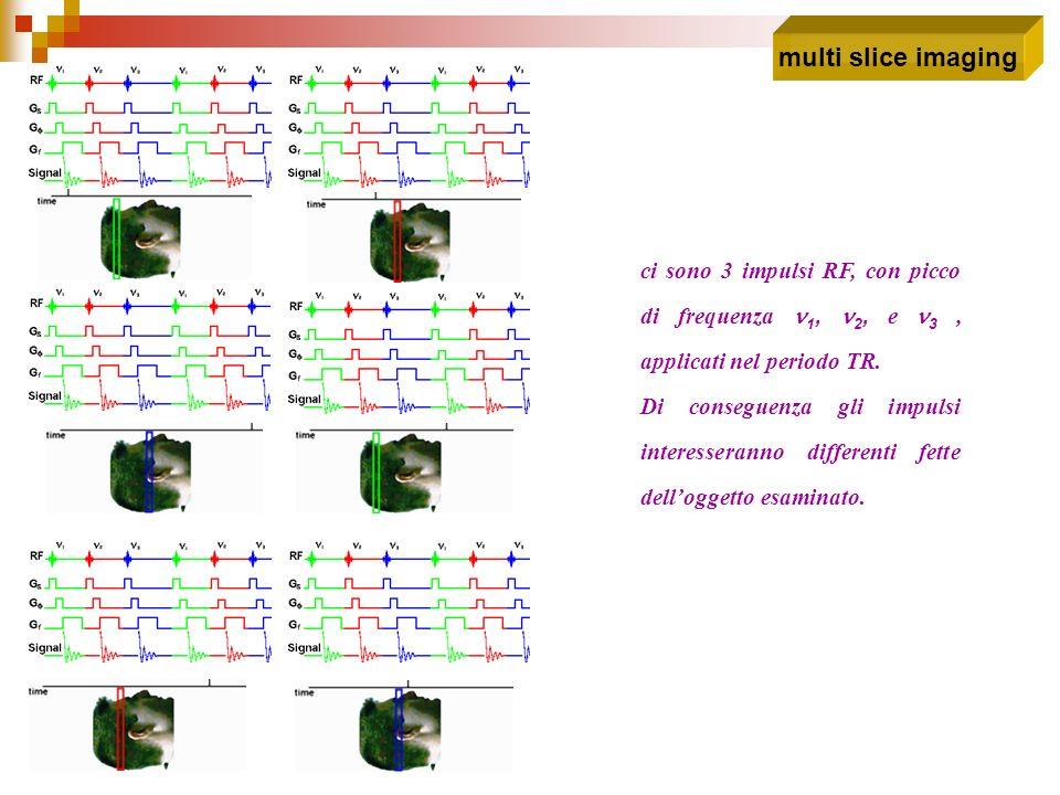 multi slice imaging ci sono 3 impulsi RF, con picco di frequenza n1, n2, e n3 , applicati nel periodo TR.