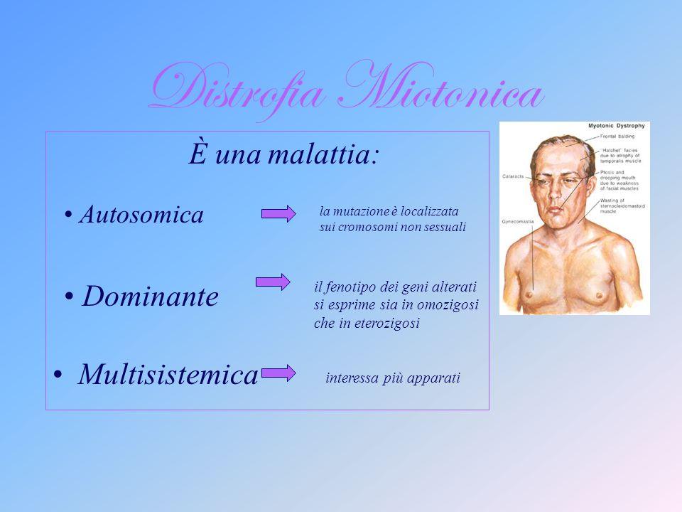 Distrofia Miotonica È una malattia: Multisistemica Dominante