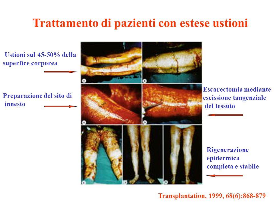 Trattamento di pazienti con estese ustioni
