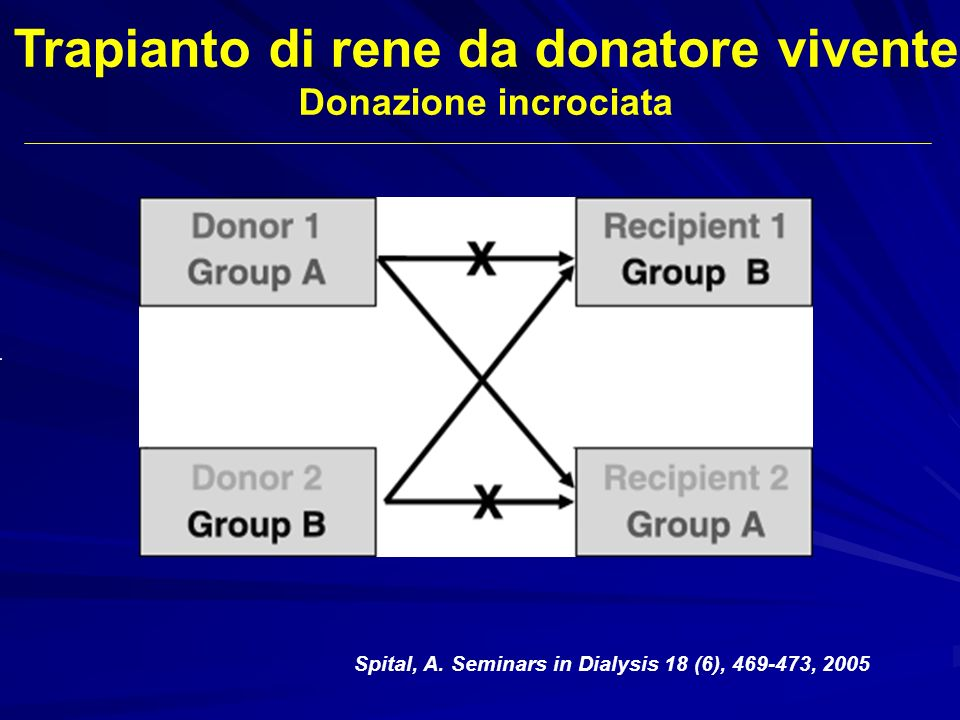 Trapianto di rene da donatore vivente