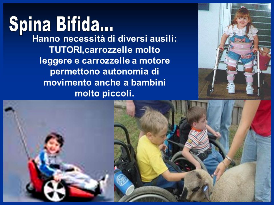 Spina Bifida...