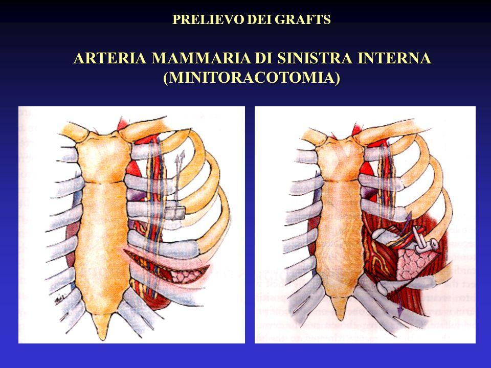 ARTERIA MAMMARIA DI SINISTRA INTERNA (MINITORACOTOMIA)