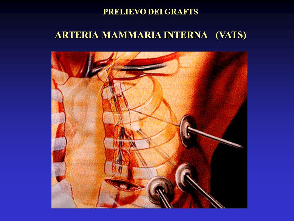 ARTERIA MAMMARIA INTERNA (VATS)