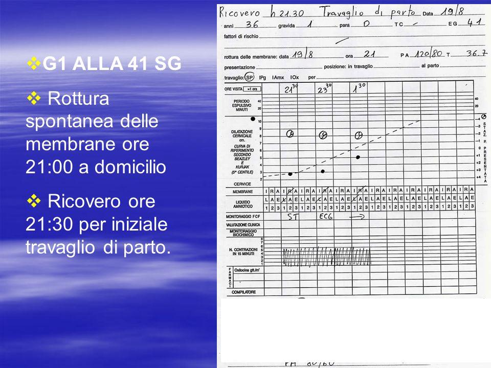 G1 ALLA 41 SG Rottura spontanea delle membrane ore 21:00 a domicilio.