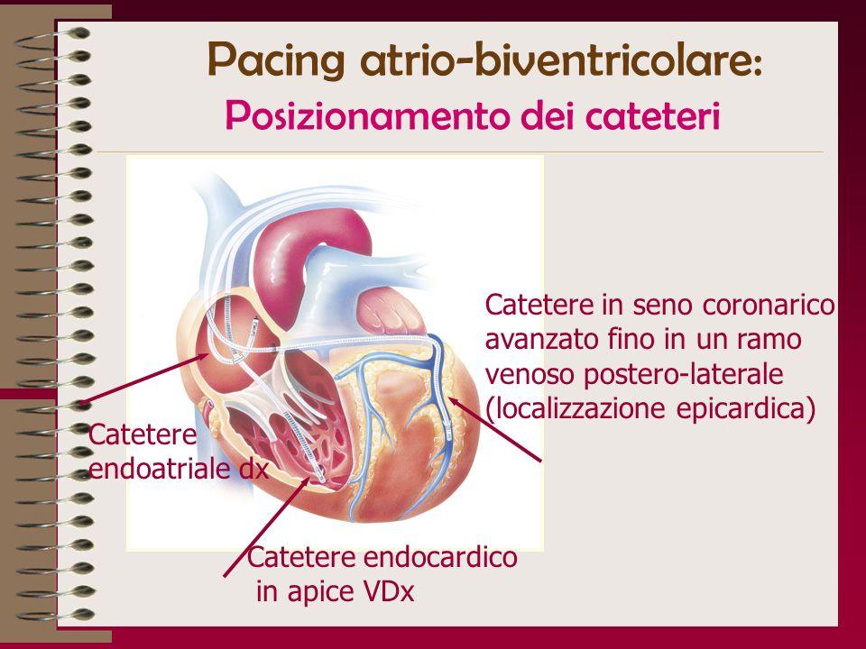Pacing atrio-biventricolare: Posizionamento dei cateteri