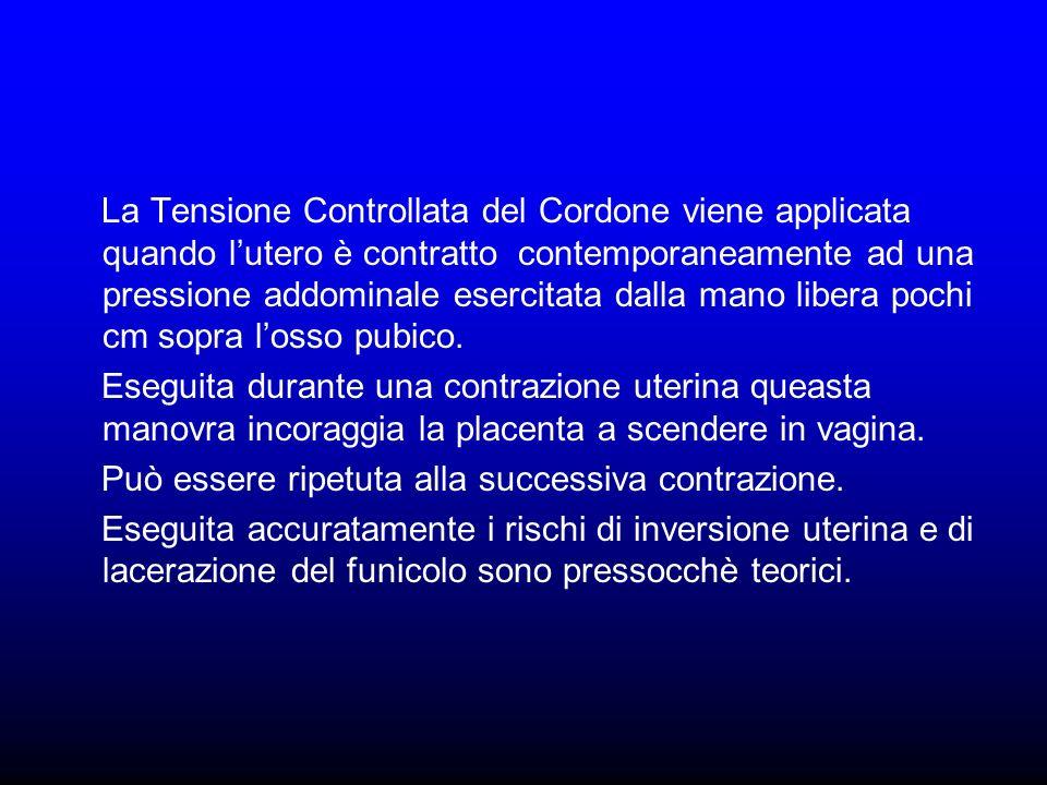 La Tensione Controllata del Cordone viene applicata quando l'utero è contratto contemporaneamente ad una pressione addominale esercitata dalla mano libera pochi cm sopra l'osso pubico.
