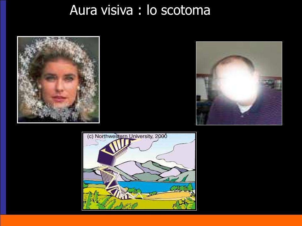 Aura visiva : lo scotoma