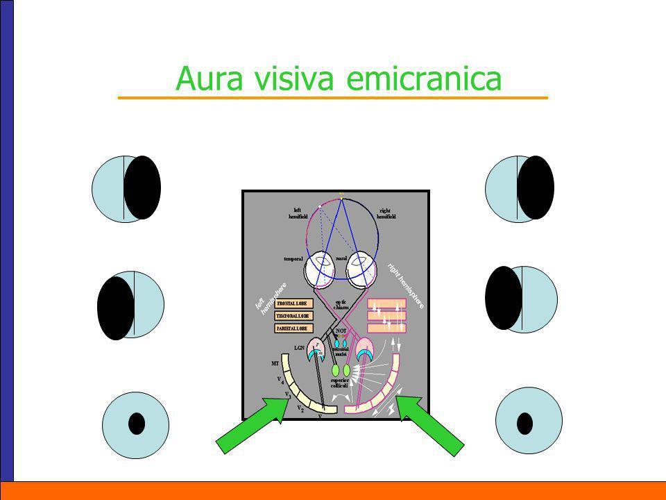 Aura visiva emicranica