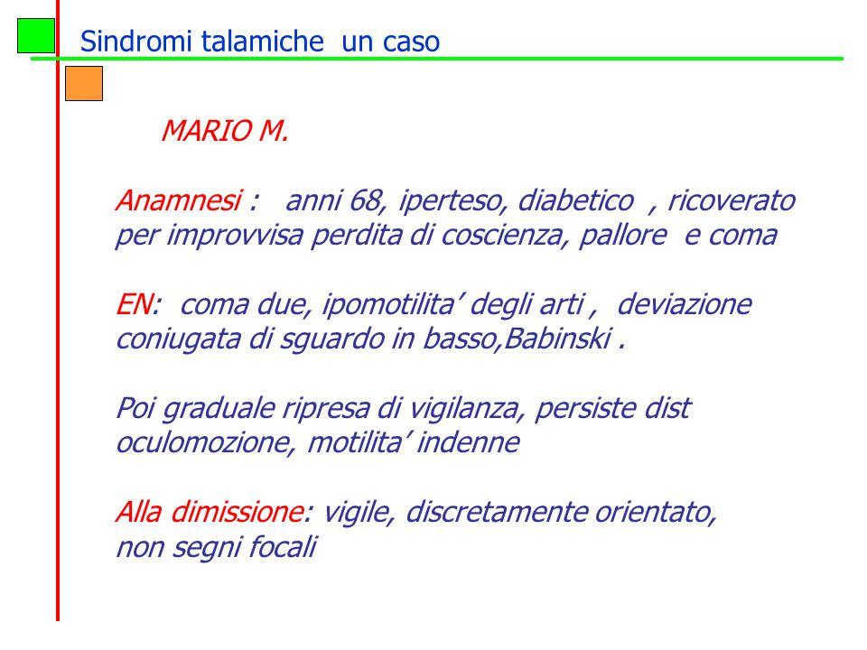 Sindromi talamiche un caso