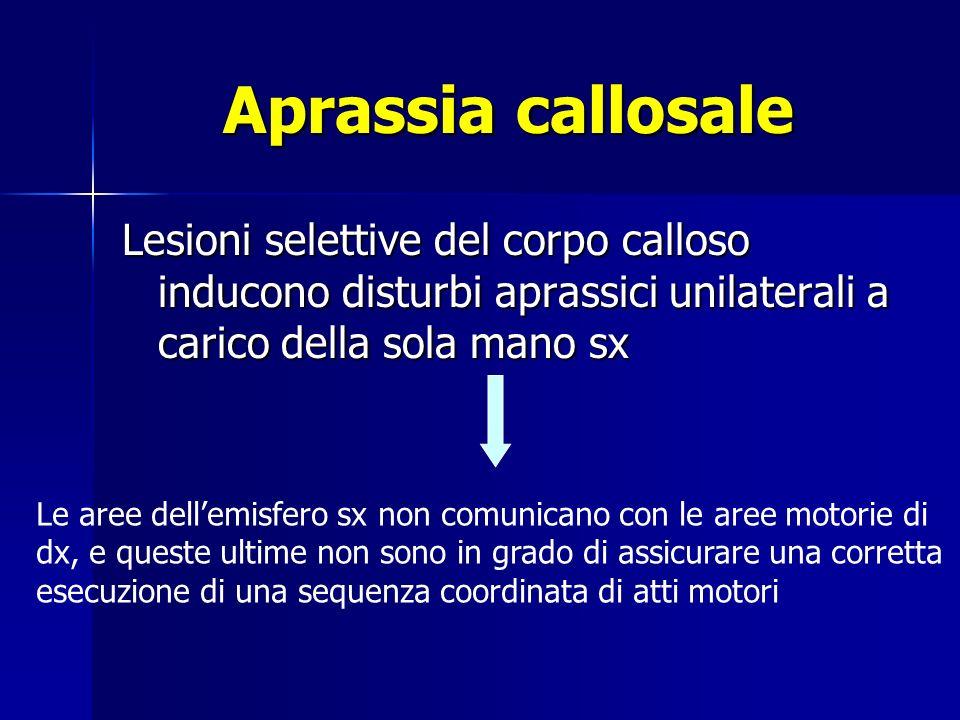 Aprassia callosale Lesioni selettive del corpo calloso inducono disturbi aprassici unilaterali a carico della sola mano sx.