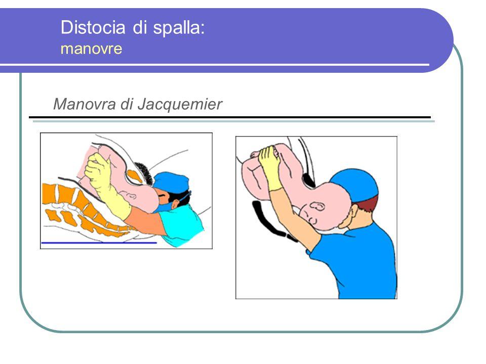 Distocia di spalla: manovre