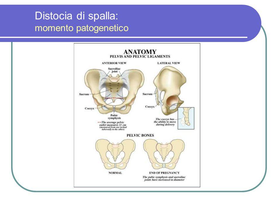 Distocia di spalla: momento patogenetico