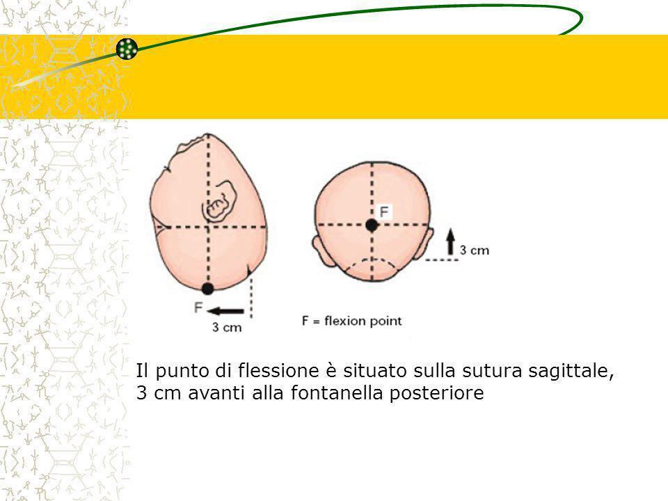 Il punto di flessione è situato sulla sutura sagittale,