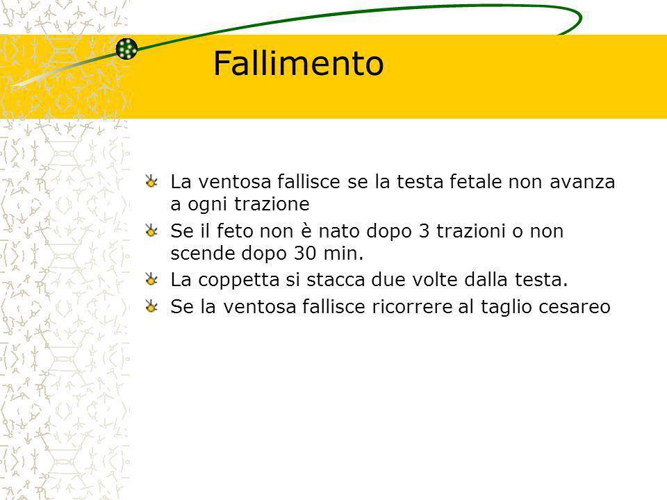 Fallimento La ventosa fallisce se la testa fetale non avanza a ogni trazione. Se il feto non è nato dopo 3 trazioni o non scende dopo 30 min.