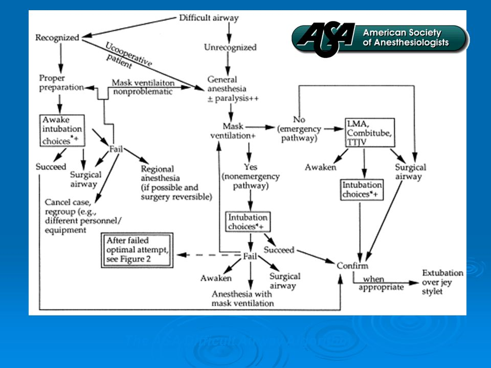 The ASA Difficult Airway Algorithm.