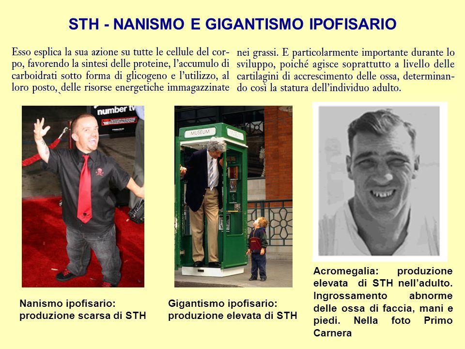 STH - NANISMO E GIGANTISMO IPOFISARIO