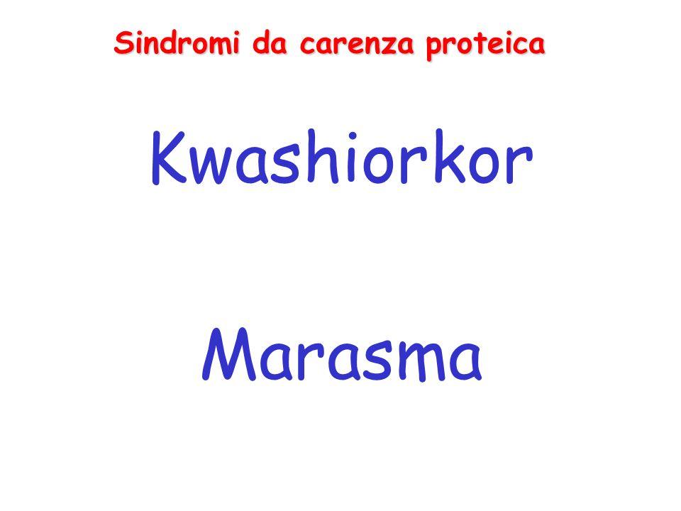 Sindromi da carenza proteica