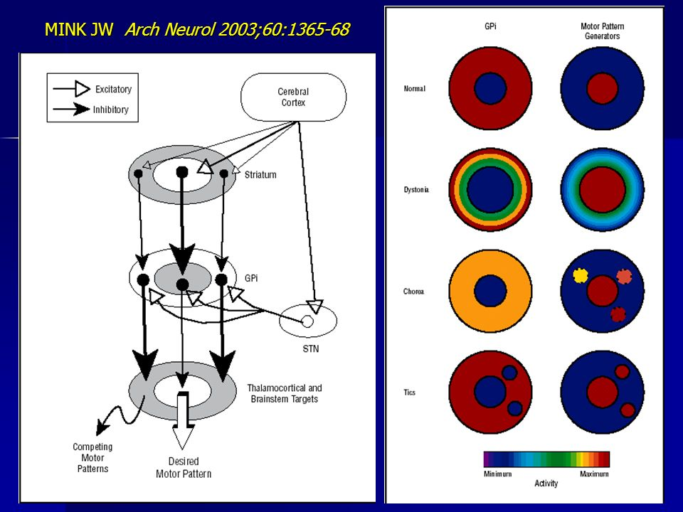 MINK JW Arch Neurol 2003;60:1365-68
