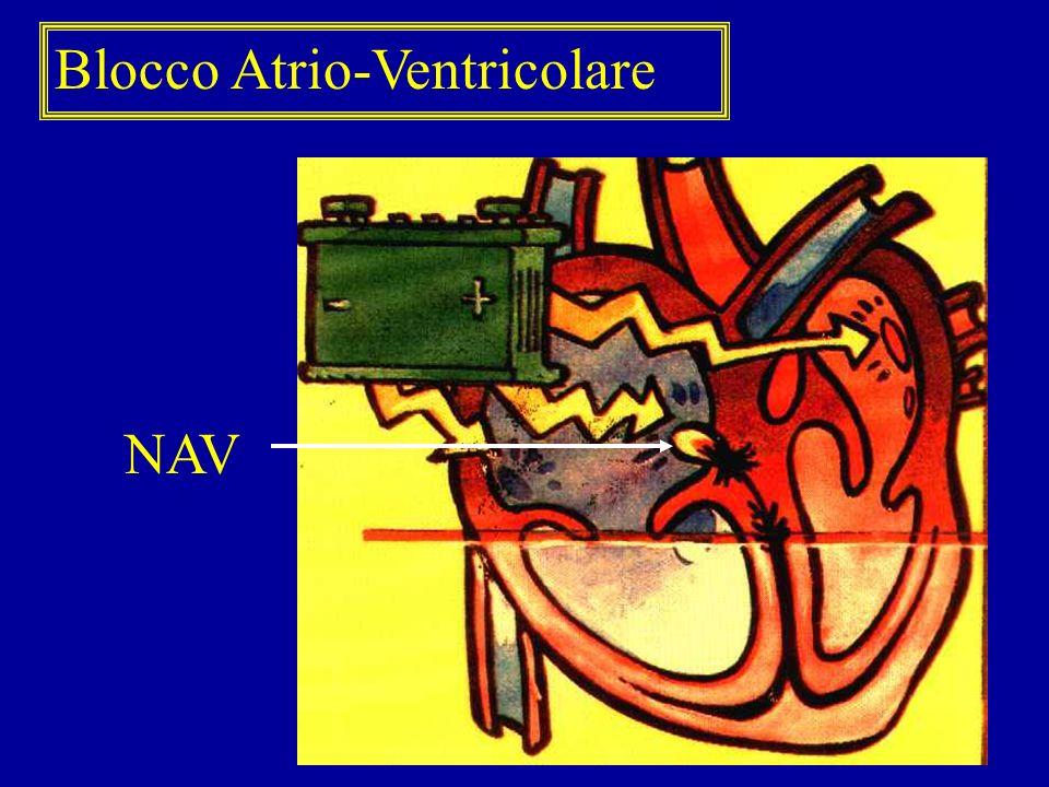 Blocco Atrio-Ventricolare