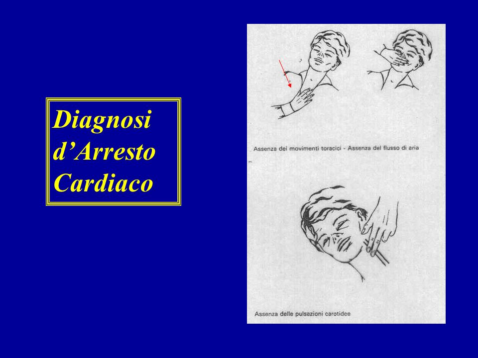 Diagnosi d'Arresto Cardiaco