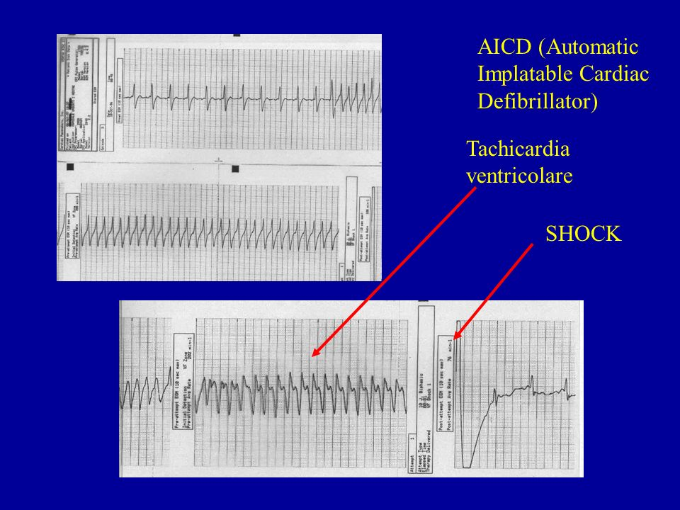 AICD (Automatic Implatable Cardiac Defibrillator)
