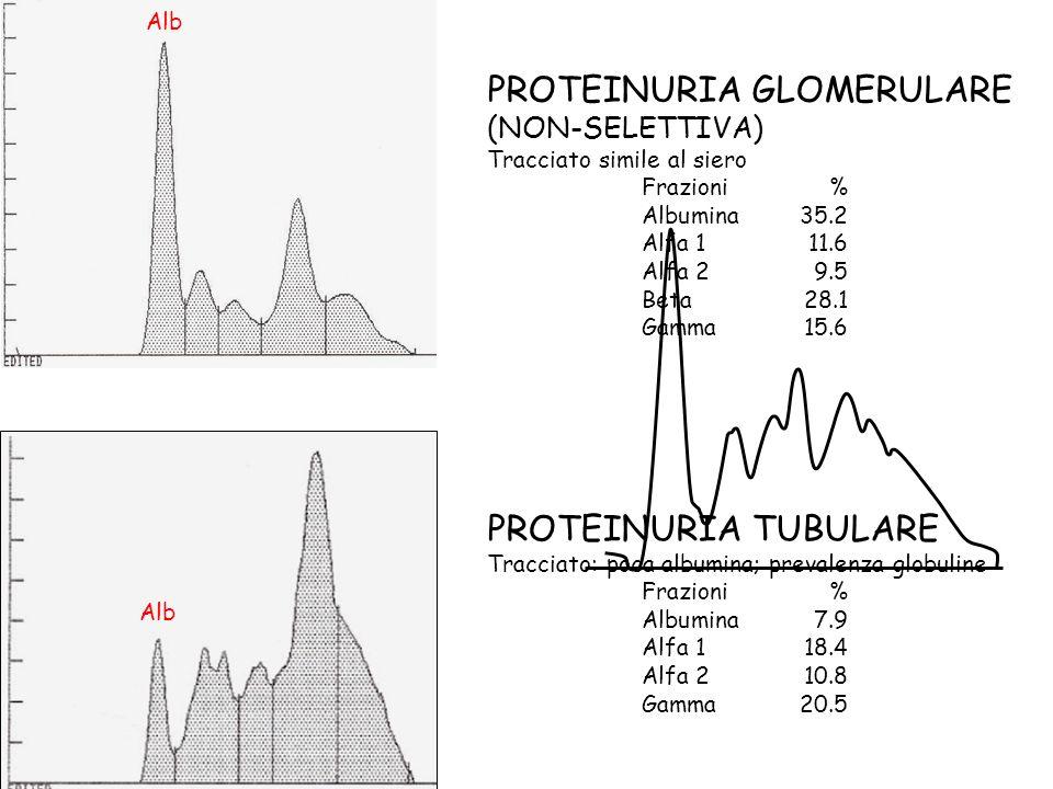 PROTEINURIA GLOMERULARE