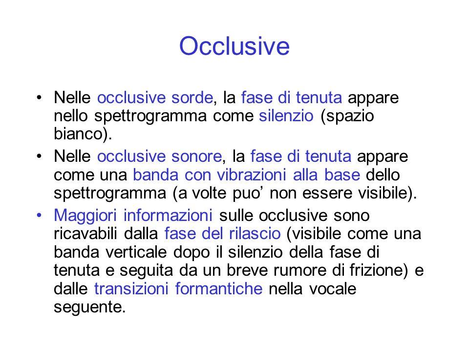Occlusive Nelle occlusive sorde, la fase di tenuta appare nello spettrogramma come silenzio (spazio bianco).
